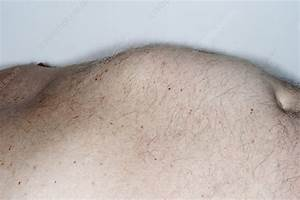 Epigastric  Abdominal  Hernia - Stock Image  1695
