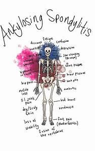 U00c9pingl U00e9 Sur My Forever Illness