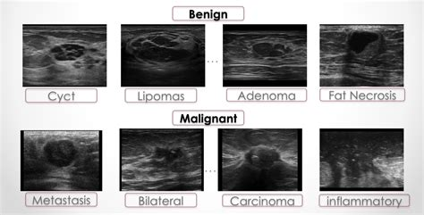 Breast Ultrasound Images 2018 Breast Cancer Ultrasound Images Different Types