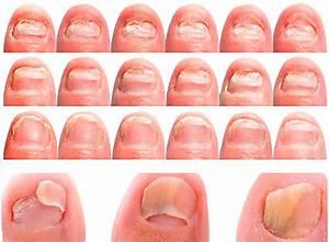 Грибок ногтей на ногах на начальной стадии фото чем лечить