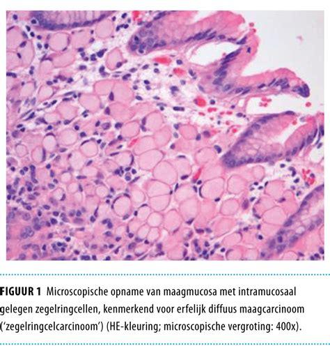 Chronische maagslijmvliesontsteking - maag lever Darm Stichting