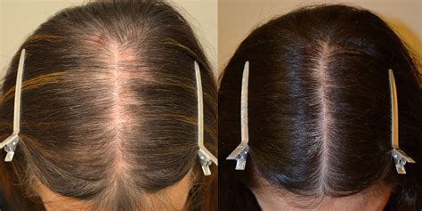 Spironolactone and Topical Minoxidil (Females) Before