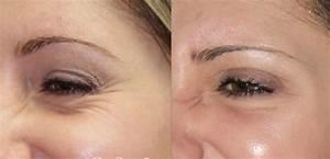 Мазь от морщин для сухой кожи лица