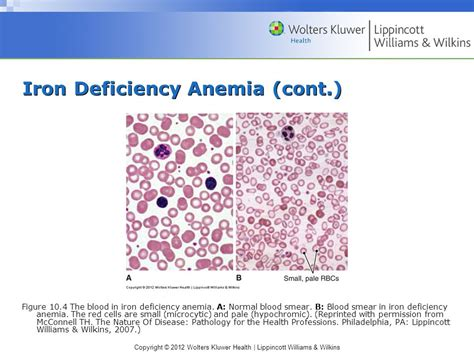 Chapter 10 Iron Deficiency Anemia And Anemia Of Chronic