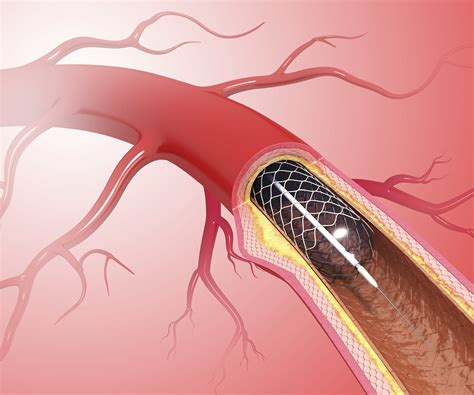 Do Heart Stents Work What You Need To Know Time
