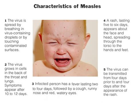 Measles Early Stages Rash