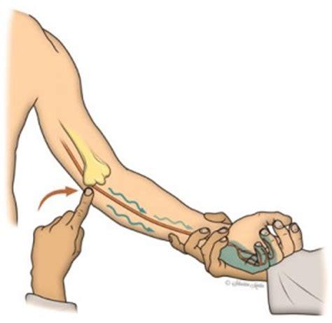 compression du nerf cubital