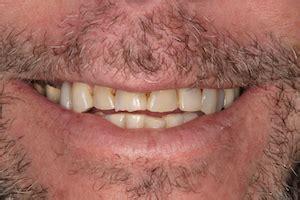 rogersville general dentist johnson city cosmetic