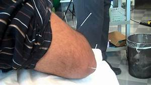 Acupuncture Of The Elbow Acupuncture Points