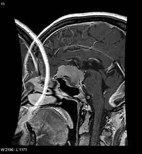 Meningioma - planum sphenoidale | Image | Radiopaedia.org