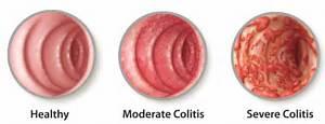 Ulcerative Colitis: Patient Education: About UC - healthPlexus.net Ulcerative Colitis