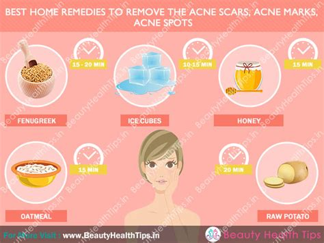 pimples and next skin issues ways to get rid of acne captive your right now