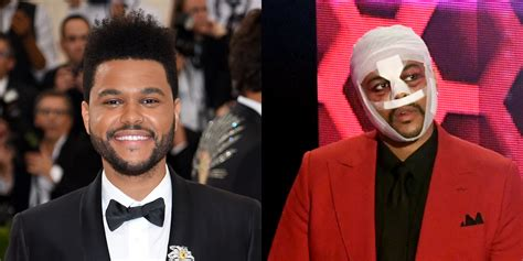 weeknd reveals  meaning   full face bandages  weeknd  jared