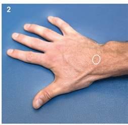 Ganglion Cyst Wrist Ligament