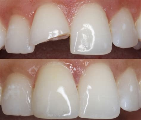 dental teeth bonding melbourne artistic touch dentistry
