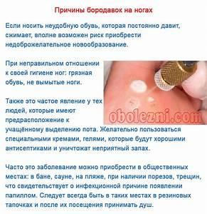 Лечение папиллом на лице лекарственными средствами