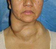 Neoplasmele tiroidiene ( nodulii tiroidieni ) - cauze, simptome