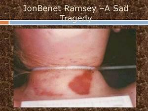 Jon Benet Ramsey Powerpoint