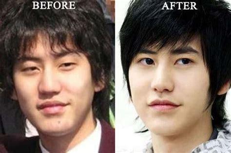cho kyuhyun plastic surgery   body size