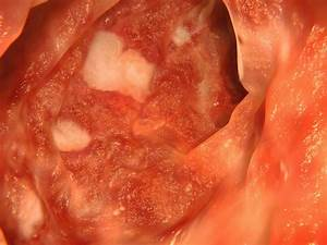 Managing Ulcerative Colitis Symptoms Naturally  U2013 Healthy