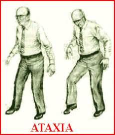 Ataxia (Coordination Impairment; Dyssynergia; Incoordination) Friedreich's Ataxia
