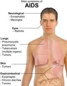 Acquired Immune Deficiency Syndrome (AIDS) - Fine Fitness  AIDS and Infections Acquired Immune Deficiency Syndrome