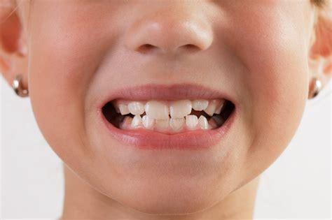 dental treatment guide   retained teeth  kids