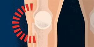 Lateral  Outer  Knee Pain