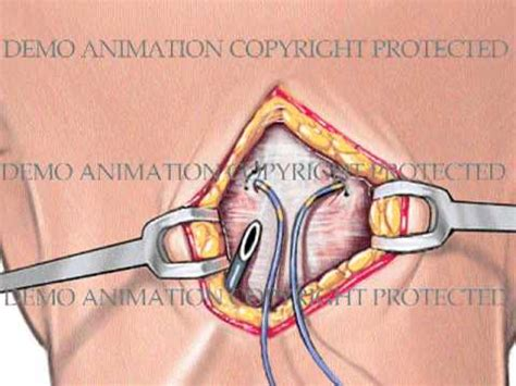 Sub-occipital Peripheral Nerve Stimulator - YouTube