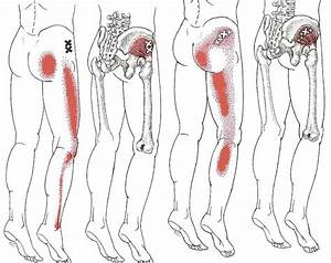 Gluteus Minimus referral from Travell and Simons - The ...