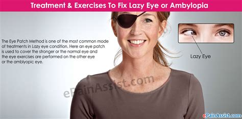 What Is A Lazy Eye Treatment Exercises To Fix Lazy Eye Or Ambylopia