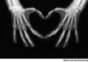 Proteomics Providing Alternatives To X-rays