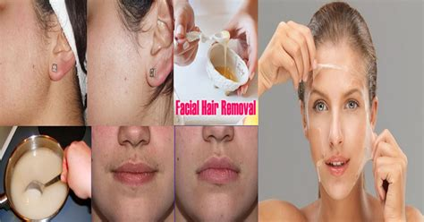 How To Remove Unwanted Facial Hair Permanently With. Phoenix College Financial Aid. Casement Window Glass Replacement. Winston Salem Eye Associates. Clean Room Chairs Class 100 Bmw X5 M Power. Liberal Arts College Endowments. International Corporate Lawyers. Dcccd Continuing Education Ut Student Loans. Electronic Prescribing Controlled Substances