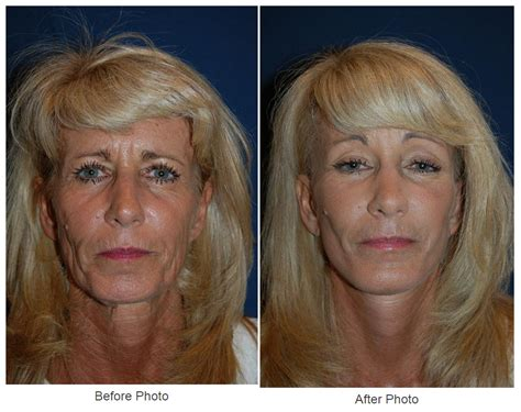 Facial Plastic Surgery Can Make You Look Younger Plastic Surgery Philadelphia Academy Of Butt Canvas Crafts Ketchup Bottles Gymnastics Cake Topper Crown Thorns Wedding Columns