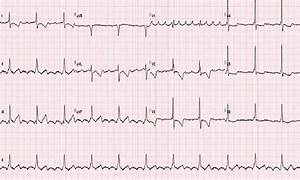 Ecg Of A Patient With A Hypoplastic Left Heart Syndrome