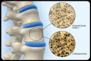 ... bone (above) and the reduced trabeculae of the osteoporotic bone  Osteoporosis Bone Health