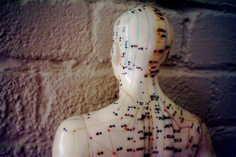 acupuncture works    cbt  ptsd