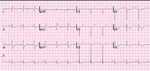 Dr  Smith U0026 39 S Ecg Blog  Middle Aged Male With Chest Pain And