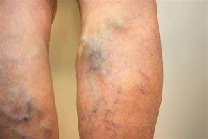 Can Venous Insufficiency Be Cured? | Leg Veins Treatment ...