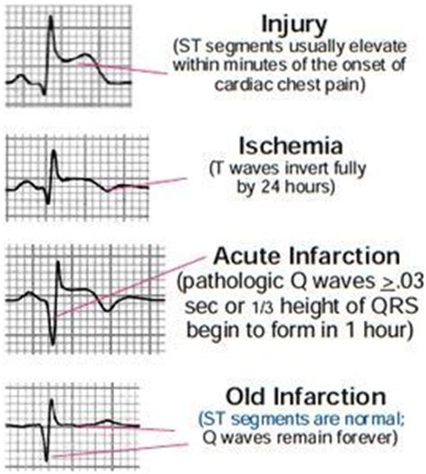Best 25+ Myocardial Infarction Ideas On Pinterest. Learner Signs Of Stroke. Corvette Signs Of Stroke. Dog Behaviour Signs. Times Table Signs Of Stroke. Lingular Pneumonia Signs. Horn Signs. Pumpkin Signs. Gameday Signs Of Stroke