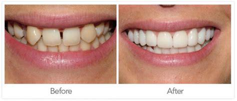 Dental Crowns - Jonesboro, AR - Low Cost Dental Crown ...