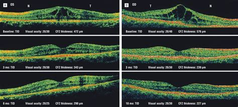 efficacy  sustained topical dorzolamide therapy  cystic macular lesions  patients