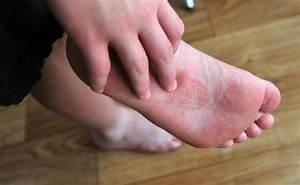 Грибок на коже ног лечение