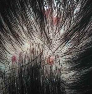 Psoriasis on my scalp