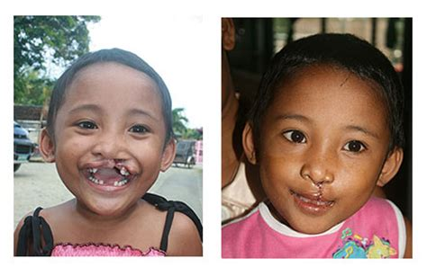 Cleft Lip Charity We Work Cleft Lip Smile Foundation The Of