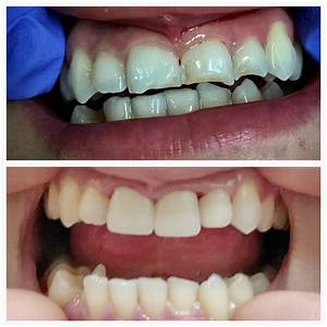 Zirconia Dental Restorations - SALMAN DENTAL - BARSTOW, CA