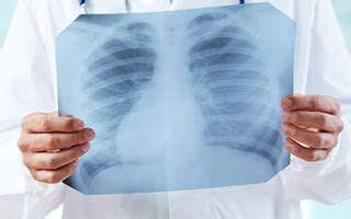 single exposure  asbestos  cancer asbestos