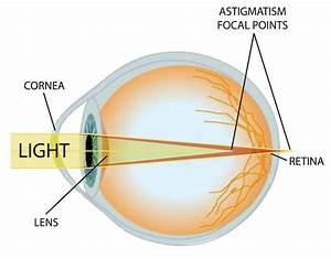 Improving Eyesight With Bates Method