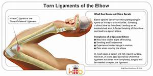 King Brand Elbow Images