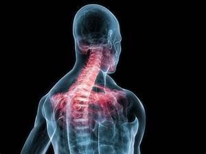 Остеохондроз шейного отдела позвоночника лечение уколами